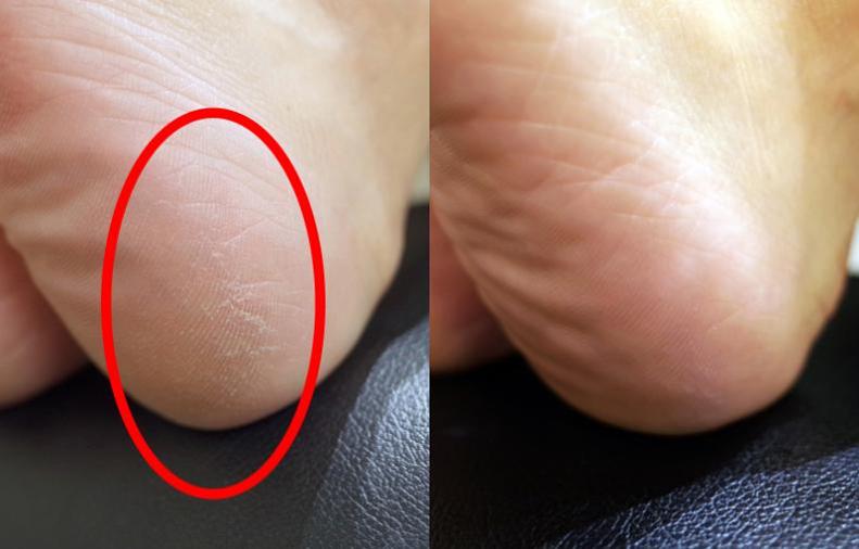Before & After比較。有保養的腳底,秋冬才不會穿絲襪常勾紗、粗糙刮/勾被,或是磨痛男朋友的皮膚唷。