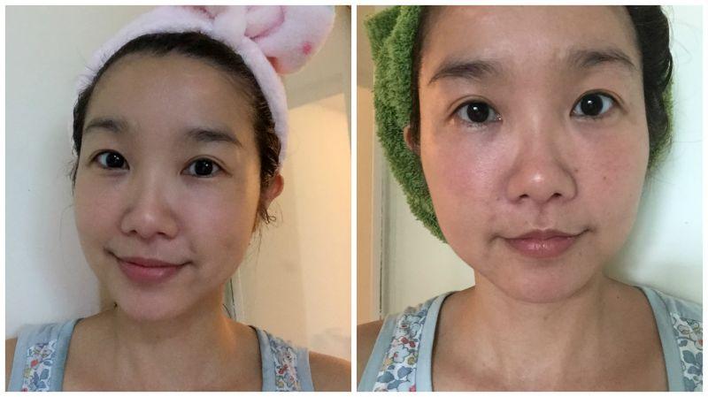 按摩敷臉後,原本一整天下來的浮腫疲累感(右臉),立刻恢復緊緻,線條感出來了(左臉)。